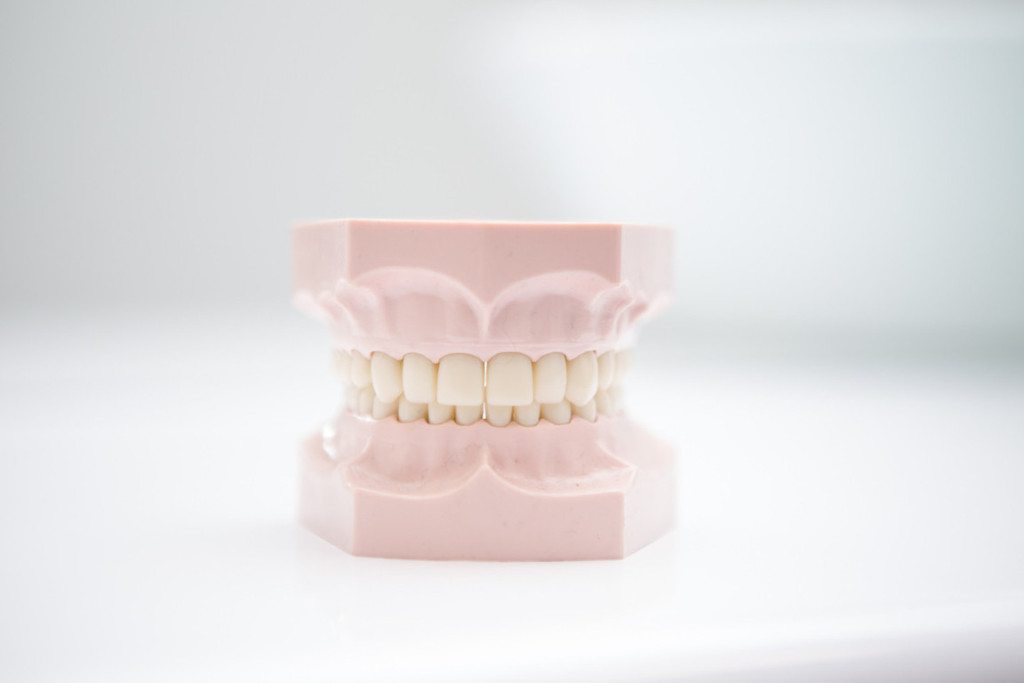 Mouthguards Geelong