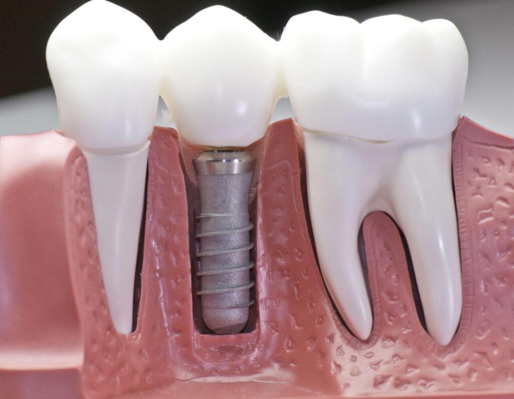 Dental implants in Geelong